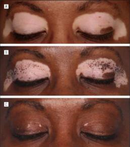 Progressiva scomparsa della Vitiligine dal viso dopo il trattamento con fototerapia UVB