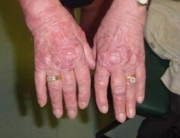 Cos'è la psoriasi, come si manifesta e quali sono i sintomi