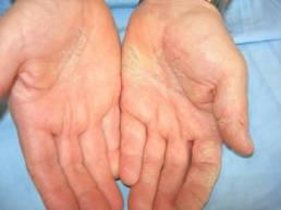 Disidrosi palmare alle mani
